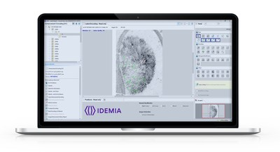 IDEMIA's Case AFIS offers efficient case management with fewer errors.