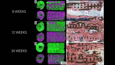Three-dimensional imaging on the left shows how bone (pictured in green) replaced the bioactive ceramic scaffold (pictured in purple) over a six-month period. Microscope images on the right shows progressively increasing degrees of bone (stained pink) and lower amount of scaffold (black) as time goes by in the body. Photo credit: Journal of Tissue Engineering and Regenerative Medicine