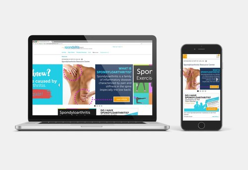 The new Spondyloarthritis Resource Center provides information and tips for dealing with chronic back and joint pain -- now available on MySpondylitisTeam, the social network for people living with spondyloarthritis.