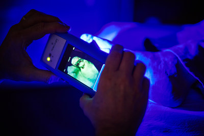 The MolecuLight i:X: Wound Fluorescence Imaging Device (CNW Group/MolecuLight)