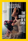 """""""The Story of a Face"""": National Geographic Unveils Youngest Full-Face Transplant Recipient in American History"""