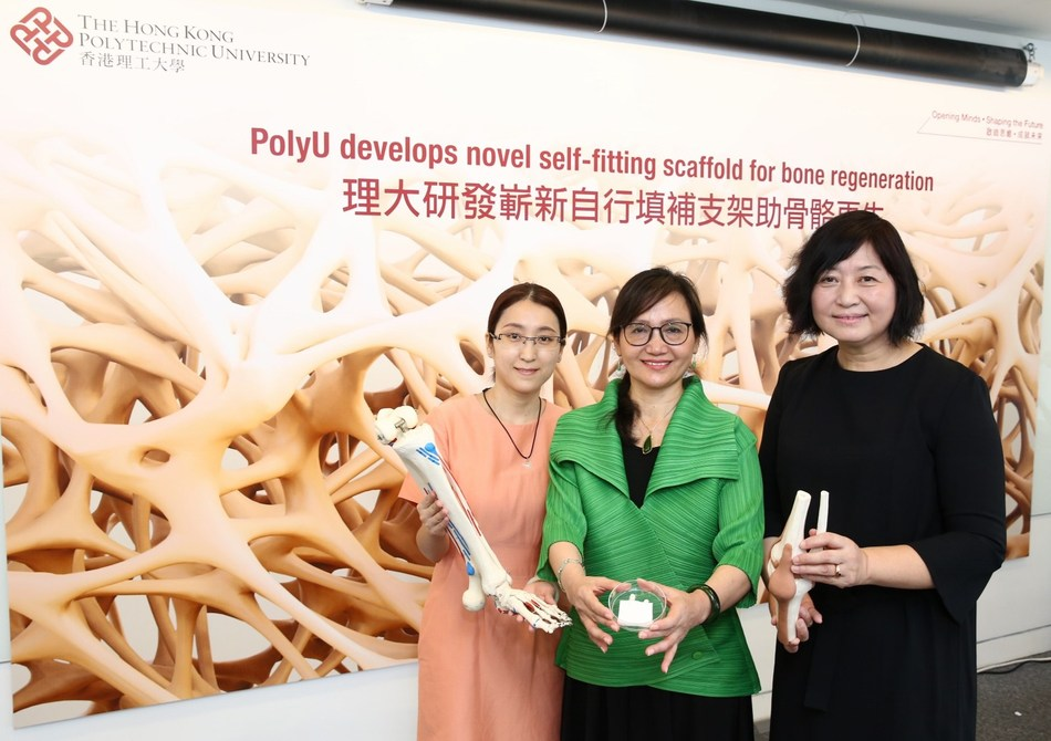 PolyU researchers have developed a novel self-fitting scaffold which can be safely and conveniently implanted into bone defects and induce bone regeneration. The team is led by Professor Hu Jinlian (centre) and Dr Xie Ruiqi (left) from the Institute of Textiles and Clothing, and Dr Guo Xia (right) from the Department of Rehabilitation Sciences. (PRNewsfoto/PolyU)
