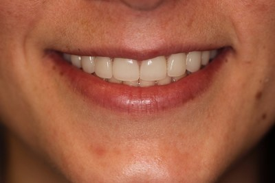 Patient after cosmetic work from the Silverstrom Group