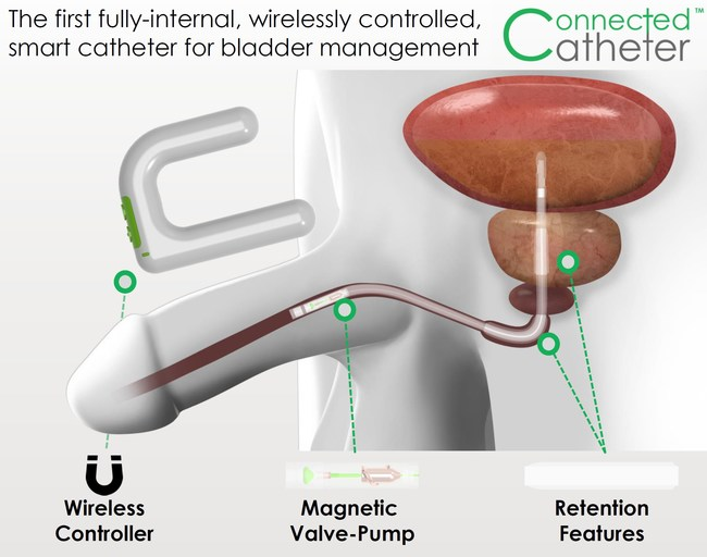 Connected Catheter 2P (C2P) by Spinal Singularity
