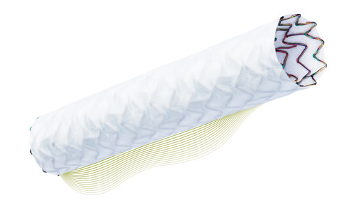 Built on BIOTRONIK's ultrathin stent platform, PK Papyrus is the first FDA approved device for the treatment of acute perforations of native coronary arteries and coronary bypass grafts in vessels 2.5 to 5.0 mm in diameter.