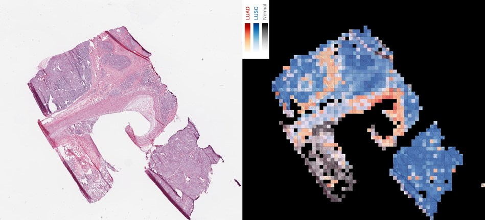 The image shows how an AI tool analyzes a slice of cancerous tissue to create a map that tells apart two lung cancer types, with squamous cell carcinoma in red, lung squamous cell carcinoma in blue, and normal lung tissue in gray.