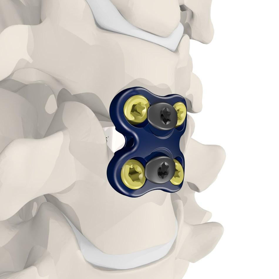 (PRNewsfoto/Meditech Spine, LLC)