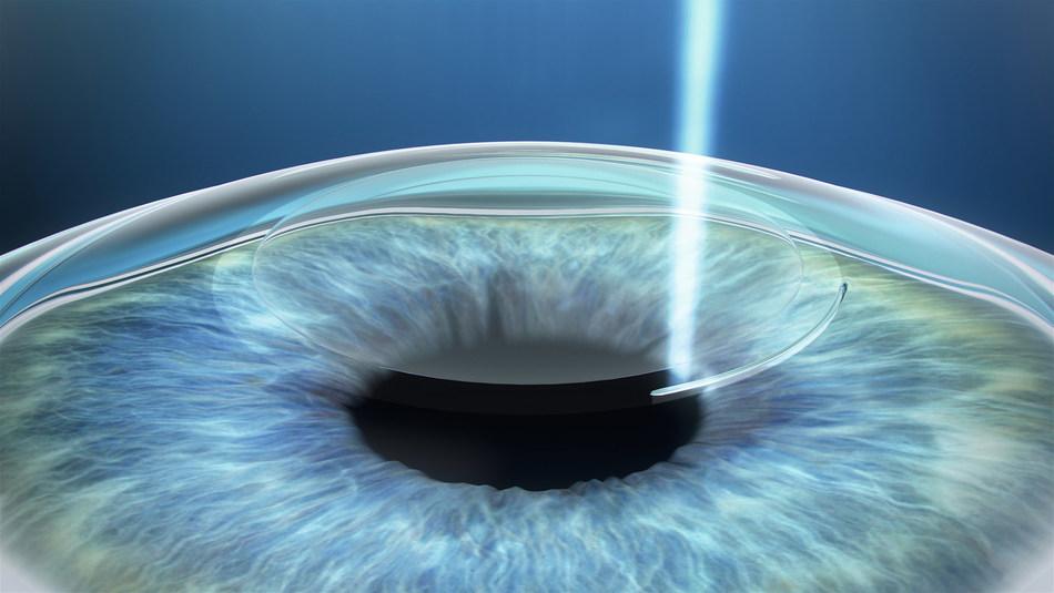 SMILE laser vision correction procedure