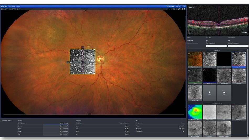 Integrated Diagnostic Imaging for Retina