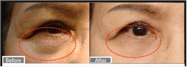 Revolutionary Device Allows Patients to Get Rid of Under Eye