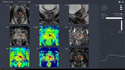 Image analysis of JPC-01K, Artificial Intelligence-based solution for prostate cancer