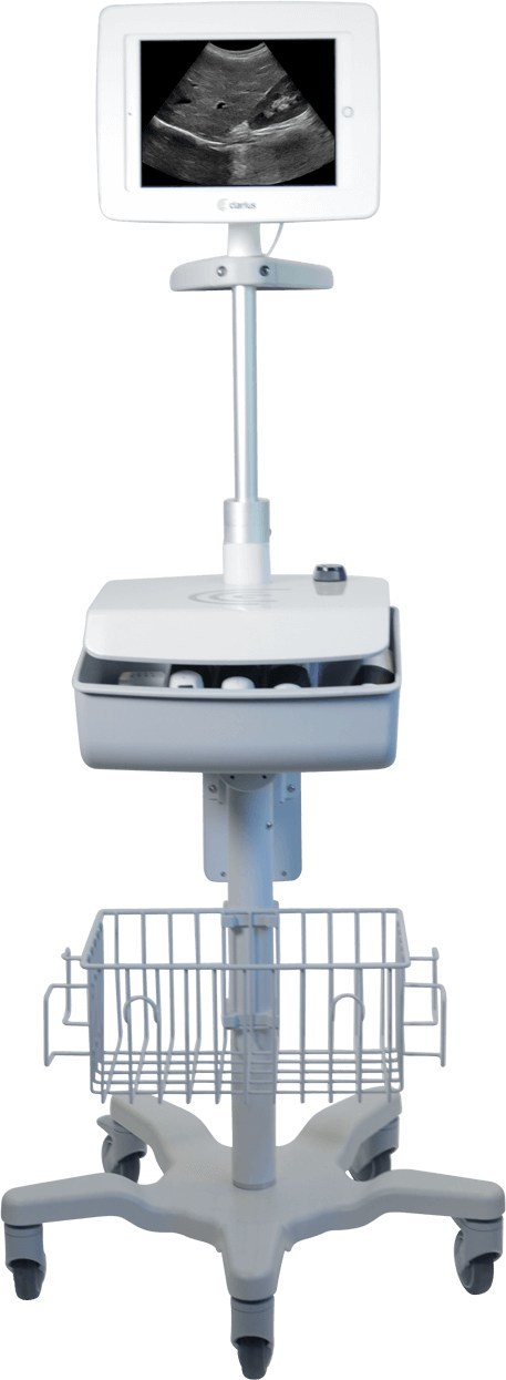 The Clarius Cart provides the utility of a cart-based system and the freedom of personal ultrasound.