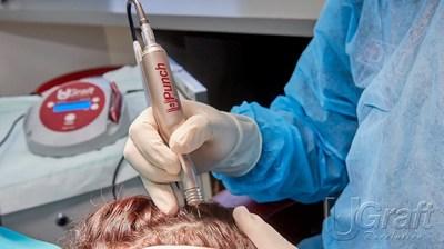 A ferramenta Intelligent Punch, quando montada no aparelho portátil de hidratação de implantes e lubrificação das perfurações Dr.UGraft Nurture, navega pelos ângulos das curvas e flexões em todas as FUEs de cabelos com textura afro.