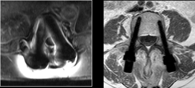 MRI pictures of Titanium pedicle screws (Left) and CarboClear pedicle screws (Right)