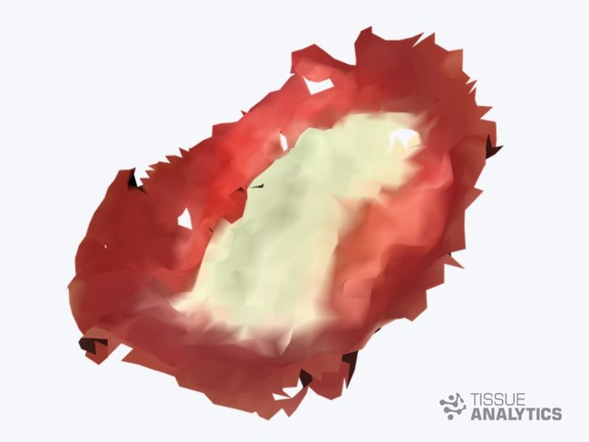 Tissue Analytics delivers mobile wound depth imaging with submillimeter resolution and no need for specialty hardware.
