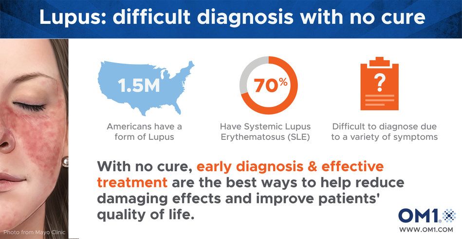 Lupus: Difficult Diagnosis with No Cure