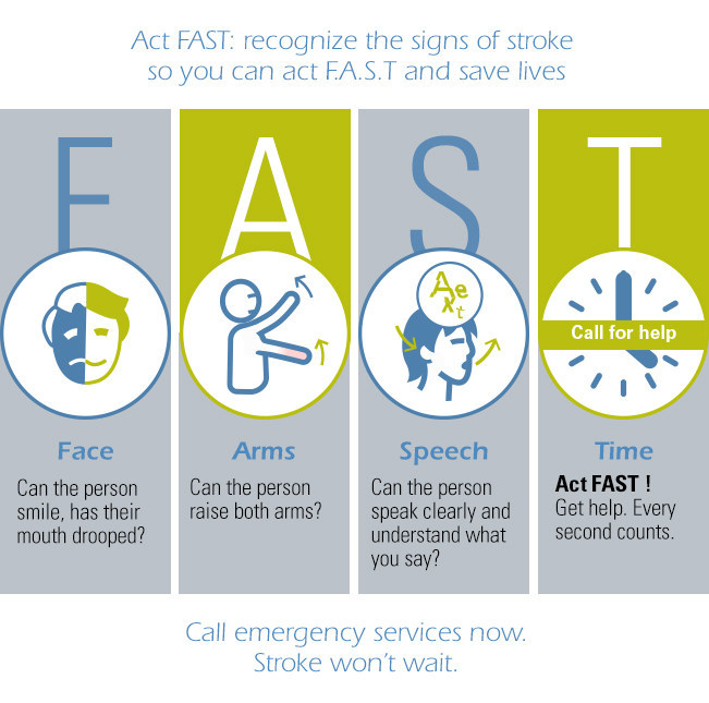 Act Fast: recognize the signs of stroke so you can act F.A.S.T and save lives (PRNewsfoto/Stryker)