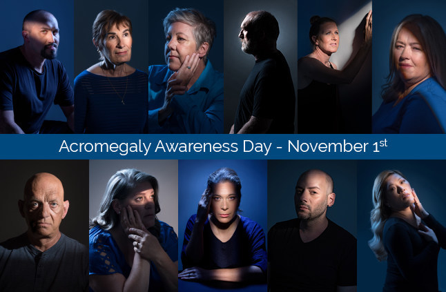 Photographs and stories from Light of Day showcased how acromegaly patients across Canada are living and thriving despite the challenges acromegaly presents them. (CNW Group/Canadian Pituitary Patient Network)