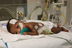 NYU Winthrop's Advances in Detecting and Treating Preterm Infant Feeding Problems Are Expected to Prompt Paradigm Shift in Protocol Across U.S., Improving Neonatal Outcomes and Reducing Medical Expenses