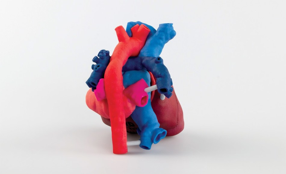 This 3D printed, patient-specific heart model helps surgeons view the patient's anatomy in 3D, prior to surgery.