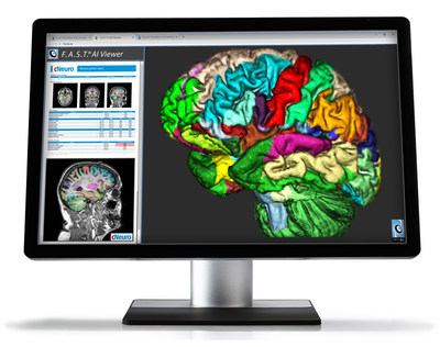 F.A.S.T.® AI Viewer powered by Fovia AI. Visualization for Artificial Intelligence, RSNA 2018.