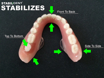 Stabil-Dent lower denture stabilizer, stabilizing forces.