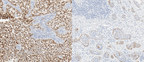 Roche launches first IVD pan-TRK immunohistochemistry assay