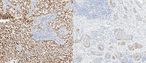 Left: Protein expression in mammary analogue secretory carcinoma with TRK fusion stained with VENTANA pan-TRK (EPR17341) Assay (20x)*  (*Fusion status based upon next generation sequencing reported from external laboratory developed test using OncomineTM Focus Assay[14-17])  Right: Protein expression in head and neck squamous cell carcinoma with wild-type TRK stained with VENTANA pan-TRK (EPR17341) Assay (20x)