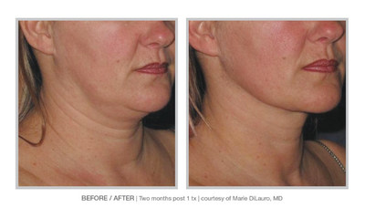 """ALLURA Neck is all about rapid contour results with a single, office-based treatment,"" says Marc Salzman MD, a Plastic Surgeon in Louisville, KY. ""It fits perfectly into my practice, next to non-invasive modalities like Coolsculpting Mini and Kybella. These procedures have the limitations of taking several months and sessions to attain modest results. With ALLURA Neck, the outcomes are profound within two weeks, 100% of the time. In addition, it is a high ROI procedure."""
