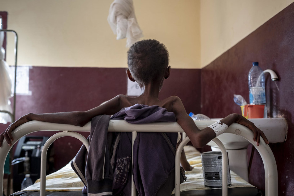 Children are treated for severe acute malnutrition at the UNICEF supported Pediatric Clinic, in Bangui, Central African Republic on September 10, 2018. © UNICEF/UN0239441/Gilbertson VII Photo (CNW Group/UNICEF Canada)