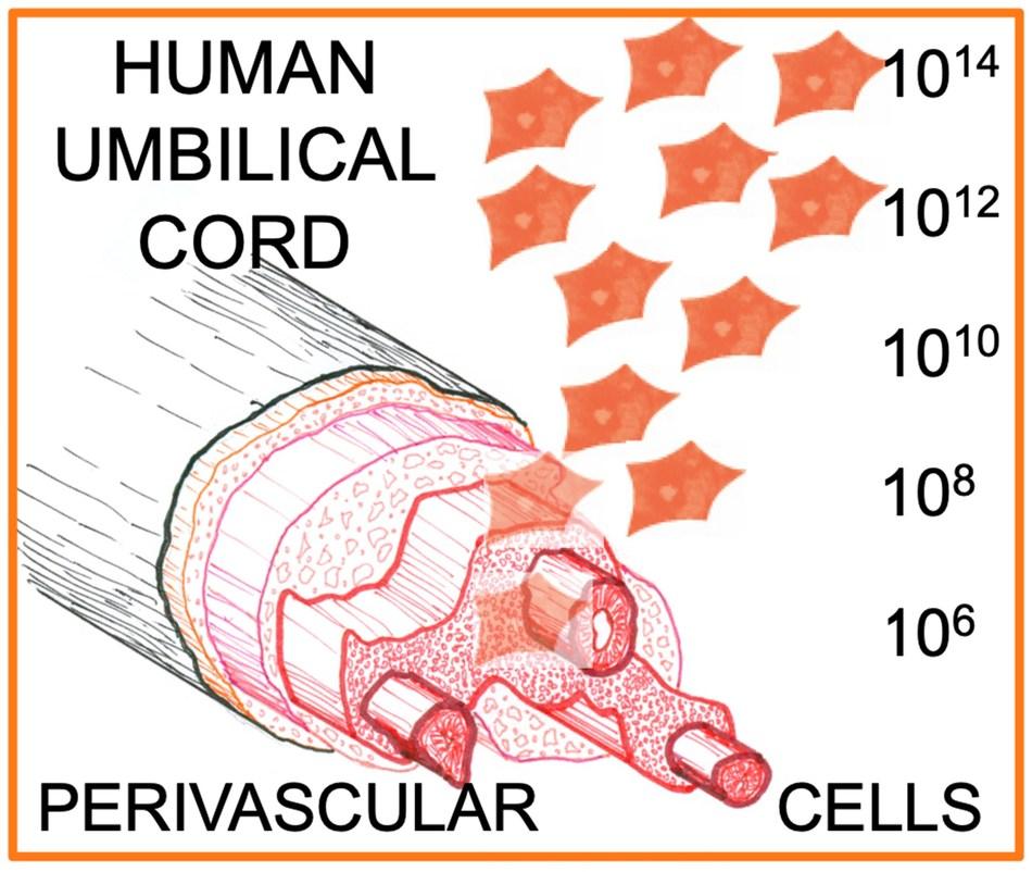 Human umbilical cord perivascular cells