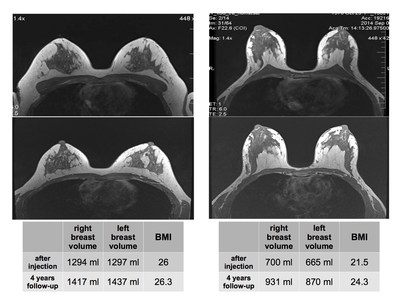 Breast volume MRI analysis performed under the medical supervision of Bioscience Institute medical director, Roberto Viel, reveals that adipose-derived stem cells (ADSCs) injection allows to maintain 100% of the volume achieved with fat grafting, and that when patient BMI increases, total breast volume increases too, demonstrating fat graft behaves like fat in other parts of the organism.