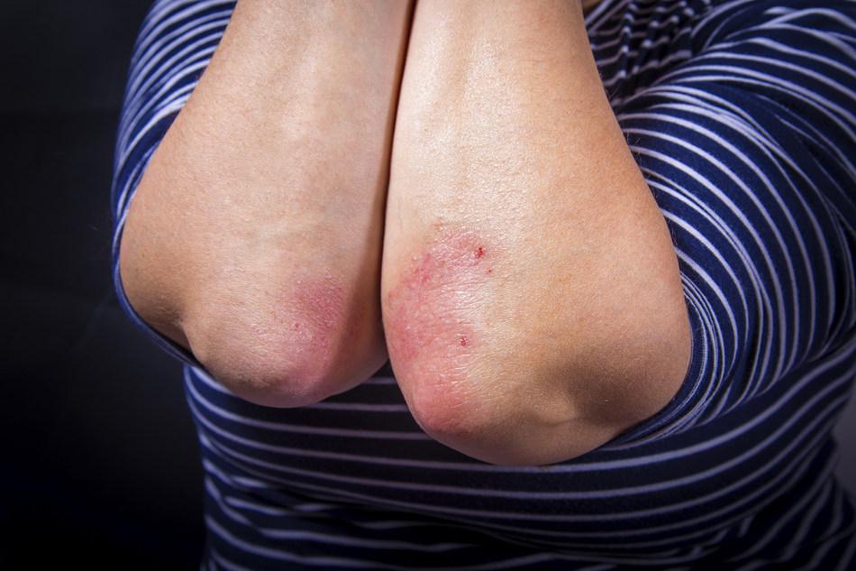 Psoriasis affects over 100 million people worldwide (PRNewsfoto/University of Birmingham)