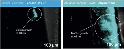 Using fluorescent microscopy, these two images show the reduction in biofilm formation using the POWERWAND catheter, ChronoFlex C with BioGUARD, versus a standard polyurethane catheter.  Virtually all device-related bloodstream infections are biofilm infections1. 1. Hoiby N, Bjarnsholt T, Moser C, Bassi GL, Coenye T, et. al. ESCMID guideline for the diagnosis and treatment of biofilm infections 2014. Clin Microbiol Infect 2015; 21:S1-S25. *PowerGlide® (CR Bard, Salt Lake City, UT)