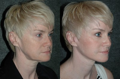 Extended Deep Plane Facelift Patient Before & After: This middle aged woman had an extended deep plane facelift procedure performed by Dr. Andrew Jacono, which included the restoration of the extended arc of a youthful jawline.