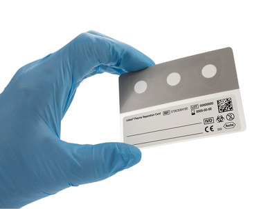 The cobas® Plasma Separation Card will reach beyond boundaries. This is the only CE-marked plasma sample collection devise which is stable under high heat and humid conditions and provides results that correlate well to traditional quantitative plasma based testing which is considered the gold standard sample type for monitoring patient's response to treatment.