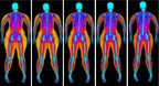 Bodyscan: 6,000 Scans Show Fat Mass Index (FMI) Is the True Measure of Body Fat
