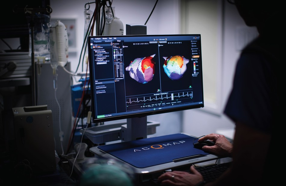 With AcQMap, physicians can create a full-chamber, 360-degree look at the atrium in real time for each individual patient, enabling truly customized treatment for every case using an iterative map, ablate, re-map, ablate strategy.