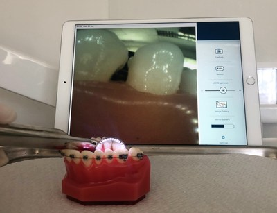 OmniVision and SMARTmirror today announced that OmniVision's wafer-level camera module enabled SMARTmirror to create the world's first Wi-Fi-enabled smart dental mirror, which can send images and video in real time to a connected tablet.