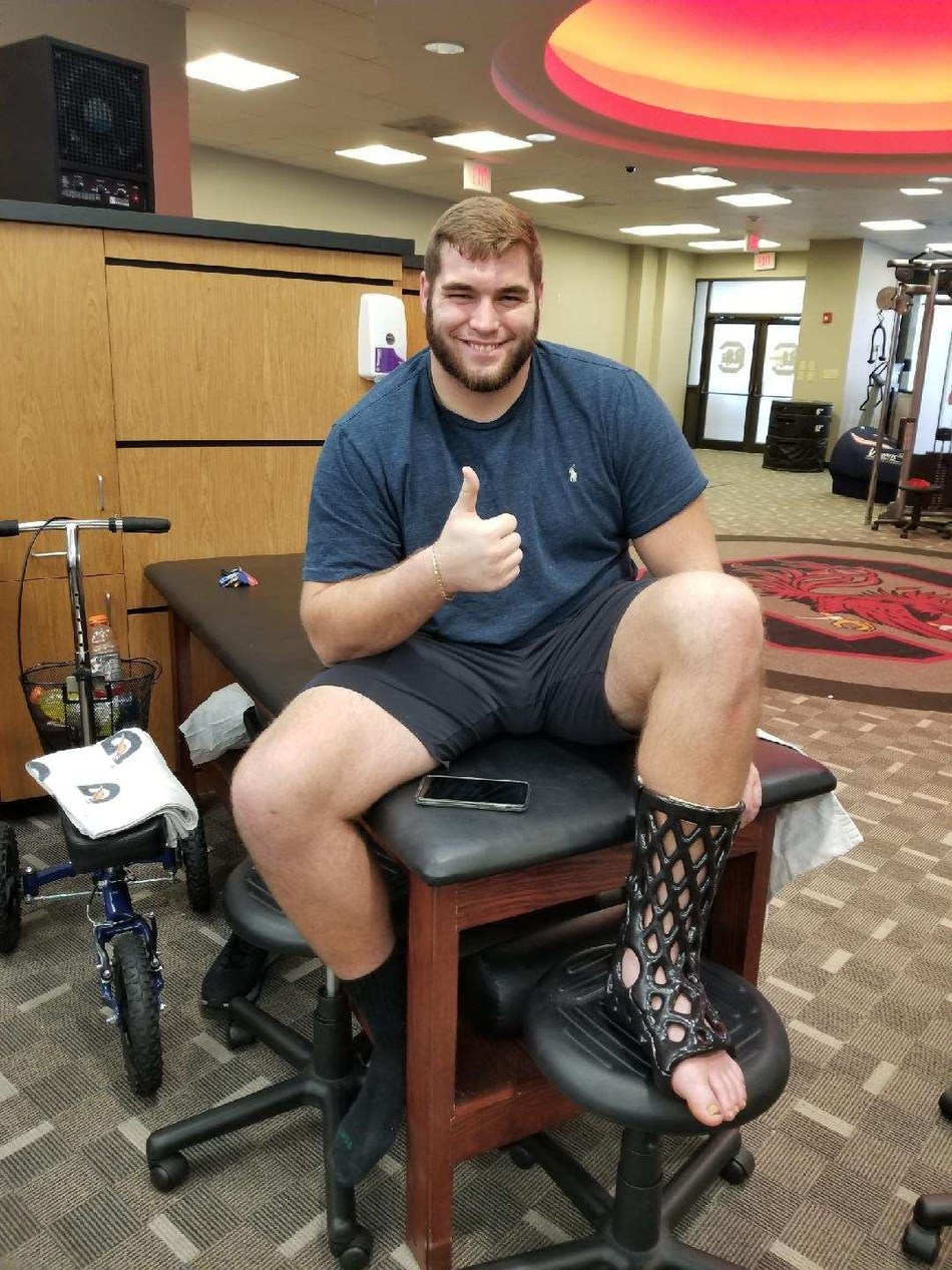 College football offensive lineman Zach Baily was recently fitted for an ActivArmor cast fortified in LINE-X after breaking his leg during a game.