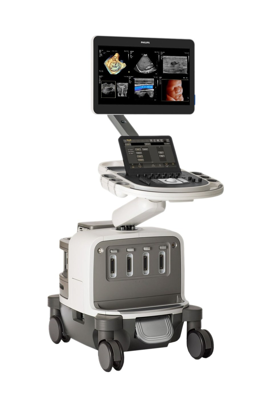 The Philips EPIQ Elite premium ultrasound system offers a range of diagnostic ultrasound solutions tailored to meet the needs of specific medical specialties, to improve clinical confidence and the patient experience.
