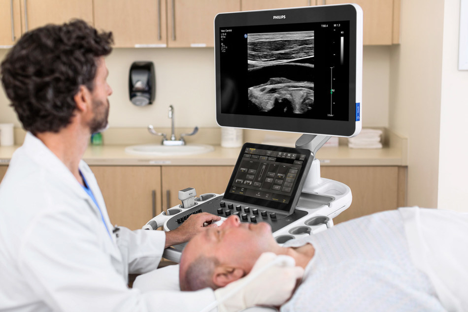 The Ultimate Ultrasound Solution for Vascular Assessment allows clinicians to make confident assessment and diagnosis of vascular conditions through easy to interpret images.