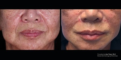 Silhouette Instalift Mid Face by Ana Trisan, PA-C - Bowes Dermatology by Riverchase