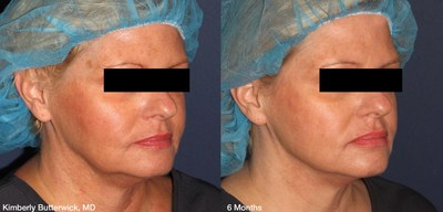 Silhouette Instalift, tercio medio facial - Cortesía de Kimberly Butterwick, M.D. (PRNewsfoto/Riverchase Dermatology and Cosm)