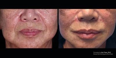 Silhouette Instalift, tercio medio facial por Ana Trisan, PA-C - Bowes Dermatology by Riverchase (PRNewsfoto/Riverchase Dermatology and Cosm)