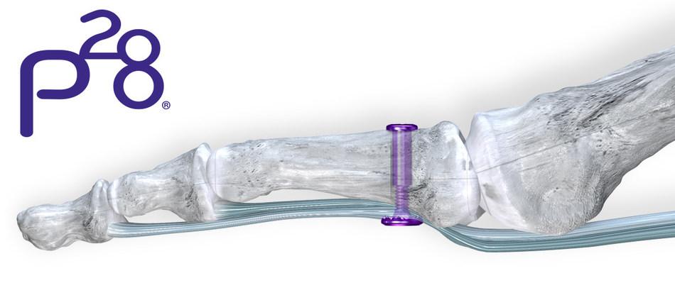TenoTac™ Soft Tissue Fixation System
