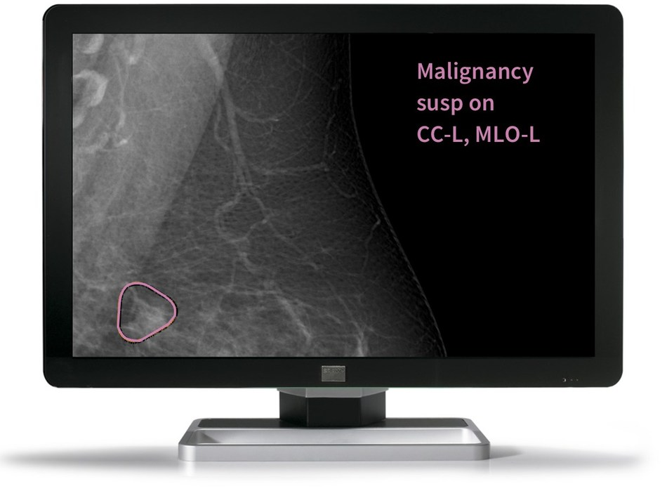 Mia presents the breast screening radiologist with a case-wise decision and highlights a region of interest