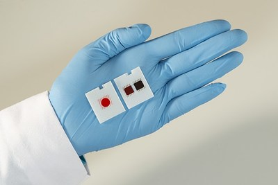 Ortho Clinical Diagnostics' VITROS® XT MicroSlide (right) is a new multi-test technology that allows labs to run two tests simultaneously.