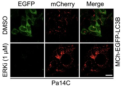 Unexpectedly, blocking signaling from mutant KRAS led to an increase in autophagy, as shown by the increase in red staining and decrease in green in the ERKi row.