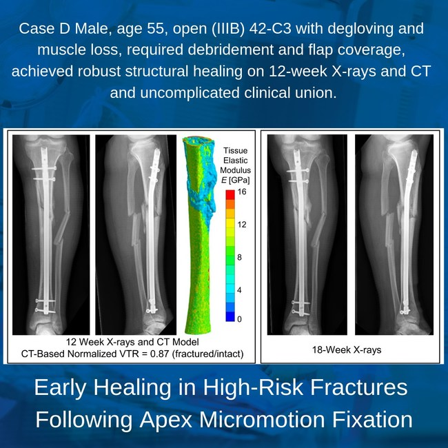 A sample case from the whitepaper featuring case reports of patients who were considered high risk for compromised fracture healing based on their injury characteristics or comorbidities and who achieved successful, uncomplicated clinical union following Apex micromotion fixation.